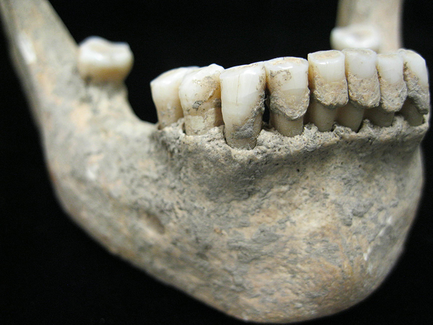 Jaw of a Medieval Individual from Germany with calculus